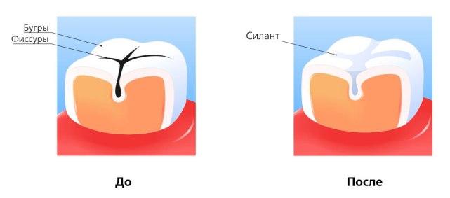 beyond polus отбеливание зубов отзывы