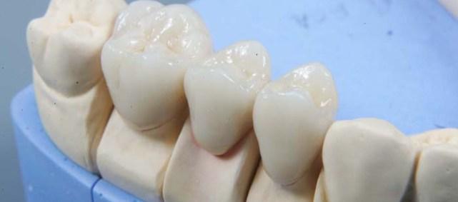 виниры протез зубов цена киев