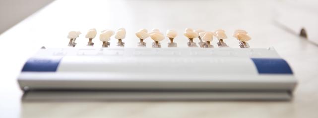 протезирование зубов осуществляется с помощью коронок, протезов и виниров