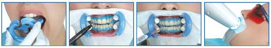 Отбеливание зубов методом Beyond polus
